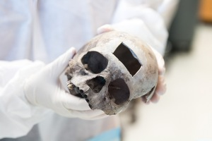 Portion of bone removed from a skull at UNT Health Science for DNA testing. Image courtesy UNT Health Science Center.